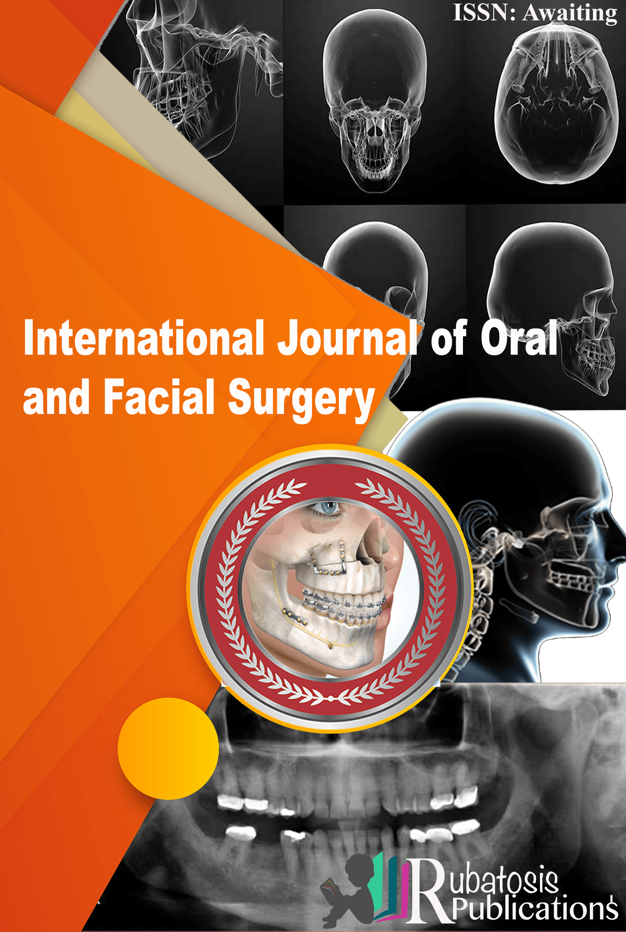 International Journal of Oral and Facial Surgery